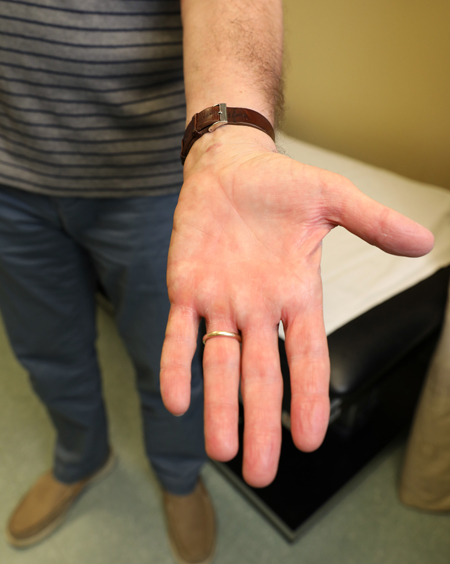 Patient Tommy Rainey is regaining function in his hand more quickly thanks to his recent carpal tunnel release surgery