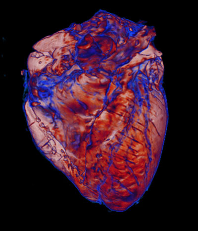 This is a 3D volume rendering of an MRI of a post-mortem heart obtained from a patient with COVID-19, acquired at ultra-high 500 micron spatial resolution.