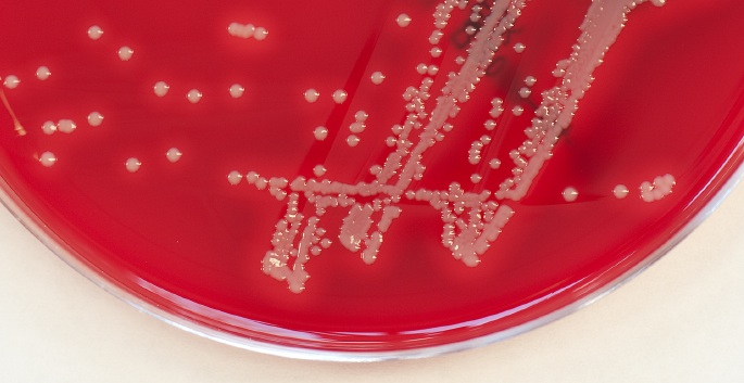 staph colonies on red petri dish